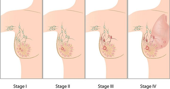 stages of breast cancer, breast cancer, breast cancer treatment, types of breast cancer