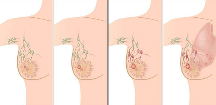 metastatic breast cancer, metastatic breast cancer life expectancy, metastatic breast cancer treatment