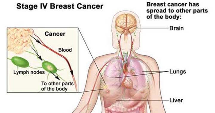 breast cancer recurrence, stage 4 breast cancer, stage 4 breast cancer treatment, metastasized breast cancer