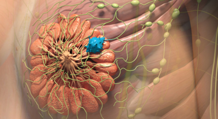 breast cancer metastasis, metastasized breast cancer, how does breast cancer spread